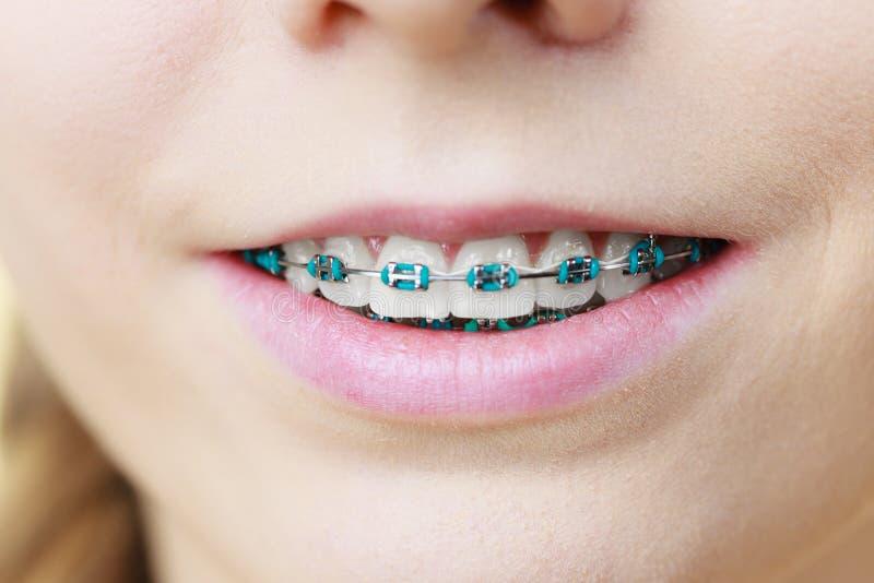 Primo piano dei denti della donna con i ganci fotografia stock libera da diritti