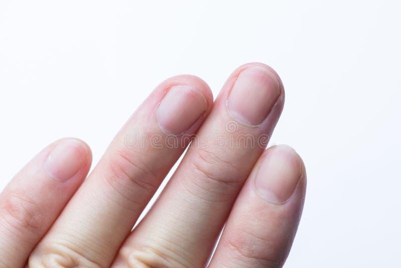 Primo piano dell'unghia del dito dell'uomo su fondo bianco fotografie stock