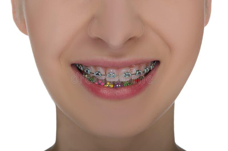 Primo piano della bocca sorridente con i ganci sui denti fotografie stock