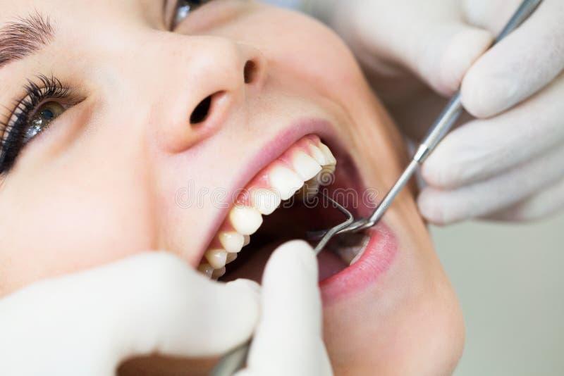 Primo piano della femmina con la bocca aperta durante il controllo orale al dentista immagini stock libere da diritti
