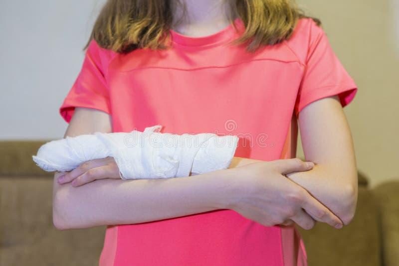 Primo piano della mano danneggiata femminile caucasica in gesso immagini stock