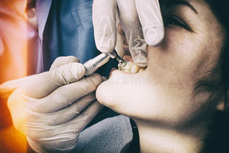Primo piano dentario di pulizia immagini stock