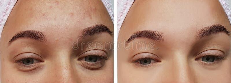 Primo piano di trattamento dell'occhio della ragazza, prima e dopo le procedure, acne di terapia fotografia stock libera da diritti