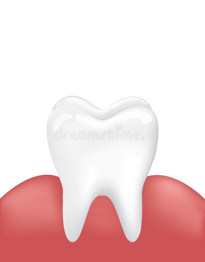 Vector Image Clean Healthy Tooth with Inflamed Gum. Medical Dental Oral Problem. Enamel Cleanliness. Isolated on White Background. stock illustration