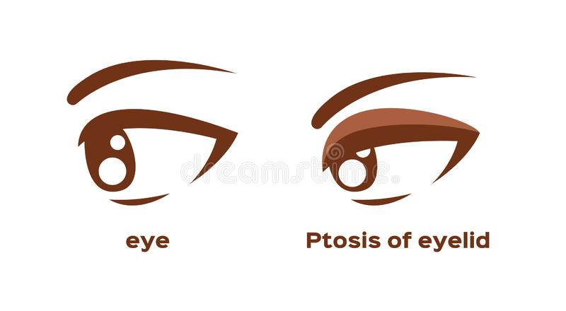 Ptosis of eyelid . eye sickness anatomy vector stock illustration