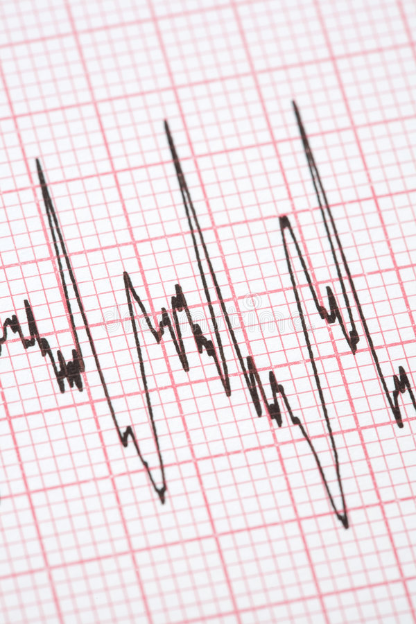 Printout from cardiograph royalty free stock image
