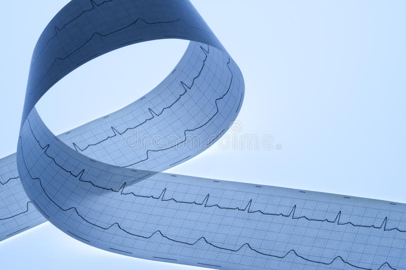 Printout Of A Regular Ecg. With A Twist royalty free stock photo