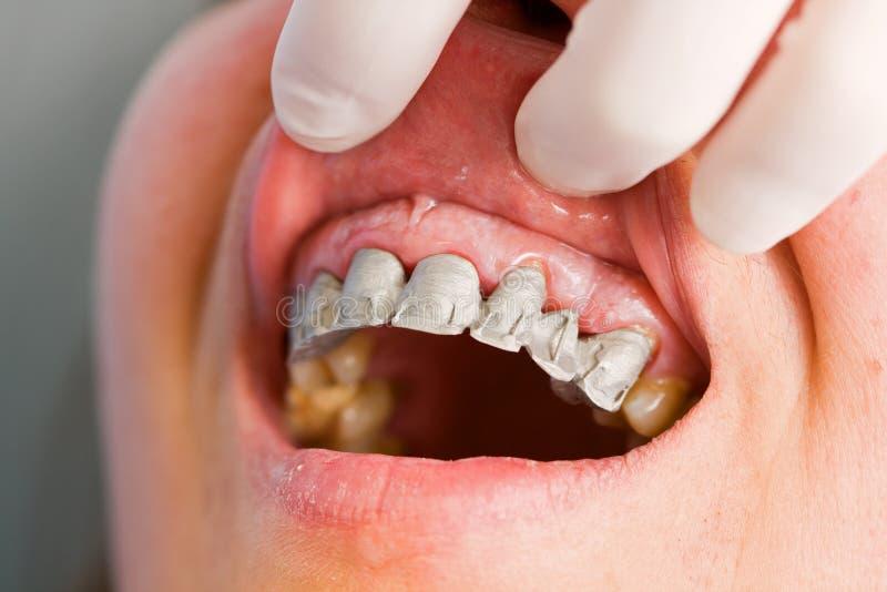 Prisão preventiva de uma dentadura parcial fixa imagens de stock