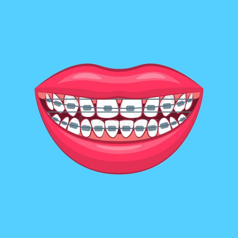 Problème 3d dentaire détaillé réaliste sur un bleu Vecteur illustration libre de droits