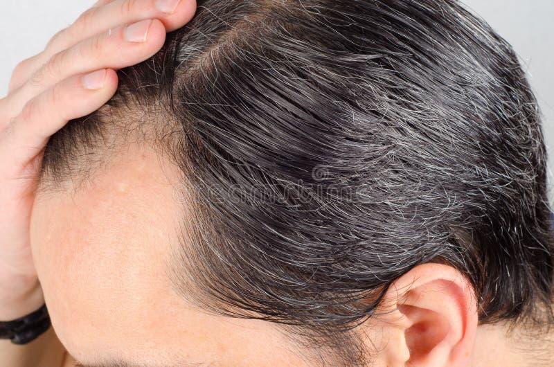 Problème de perte des cheveux d'homme images libres de droits
