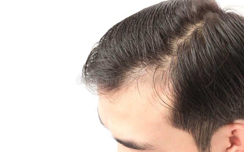 Problème sérieux de perte des cheveux de jeune homme de plan rapproché pour la feinte de soins de santé photos stock