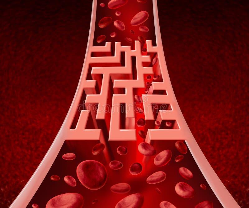 Problèmes de Circultation de sang illustration de vecteur