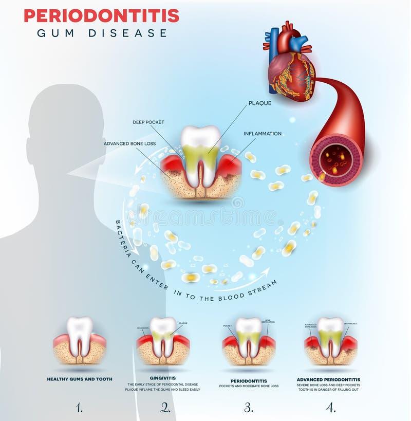 Problèmes de maladie des gencives de Periodontitis illustration libre de droits