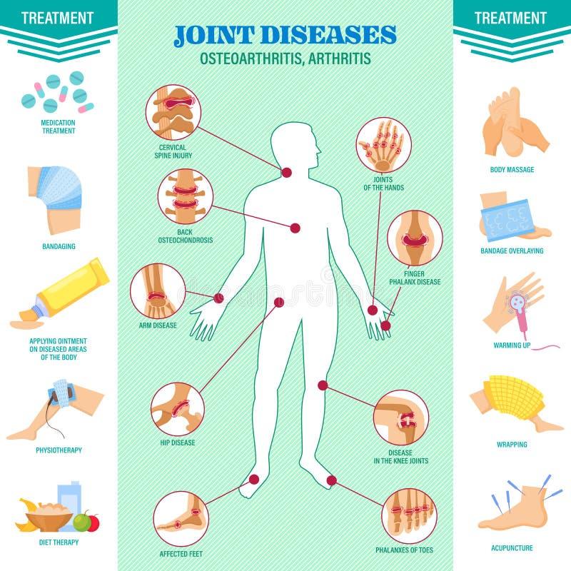 Probl?me d'?pine Douleur des maladies de joints Arthrite, symptômes d'ostéoarthrite, traitement de médicament illustration de vecteur