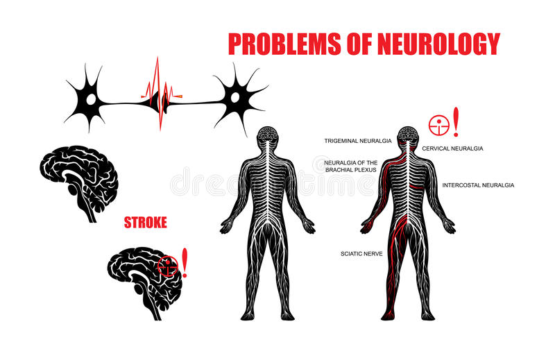 PROBLEM AV NEUROLOGI vektor illustrationer