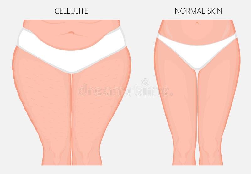 Problem_Cellulitis del cuerpo humano y vista delantera de la pérdida de peso libre illustration