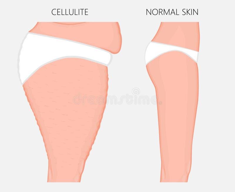 Problem_Cellulitis del cuerpo humano y vista lateral de la pérdida de peso ilustración del vector