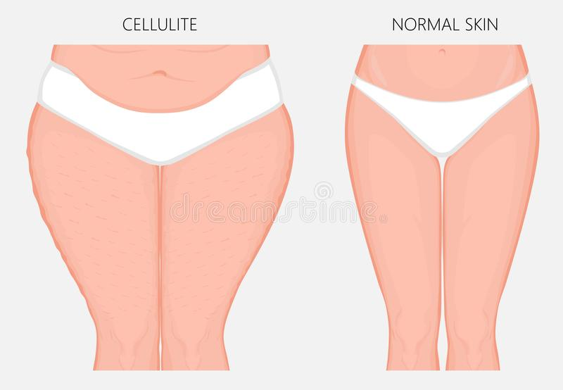 Problem_Cellulitis do corpo humano e opinião dianteira de perda de peso ilustração royalty free