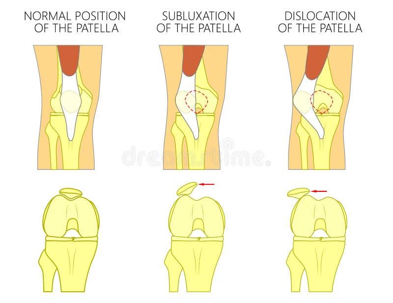 Problem_Dislocation De La Junta De Rodilla De La Rótula Ilustración ...