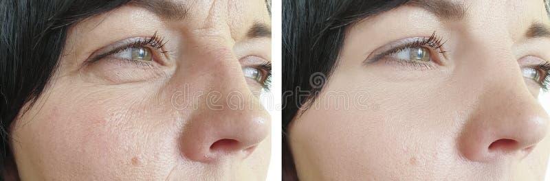 Problem för borttagning för dermatologi för behandling för kvinnaskrynklor före och efter arkivfoto