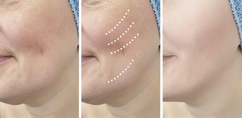 Problem för borttagning för dermatologi för vitalisering för resultat för behandling för kvinnaskrynklor före och efter moget royaltyfri fotografi