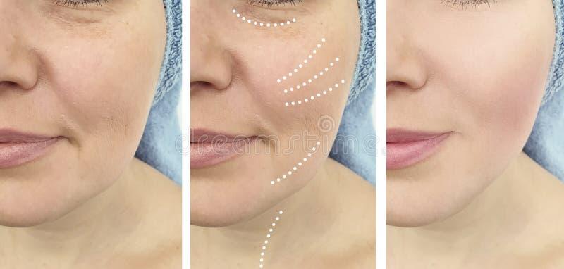 Problem för borttagning för dermatologi för vitalisering för resultat för regenerering för behandling för kvinnaskrynklor före oc royaltyfri fotografi