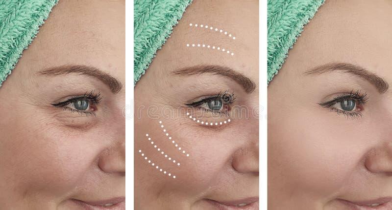 Problem för borttagning för dermatologi för vitalisering för resultat för regenerering för kvinnaskrynklor före och efter moget royaltyfri foto