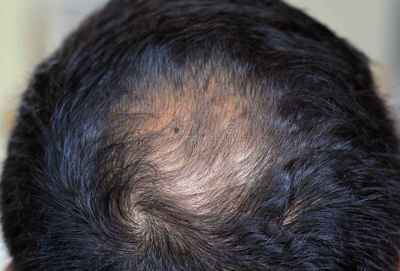 Problem för hårförlust royaltyfri bild