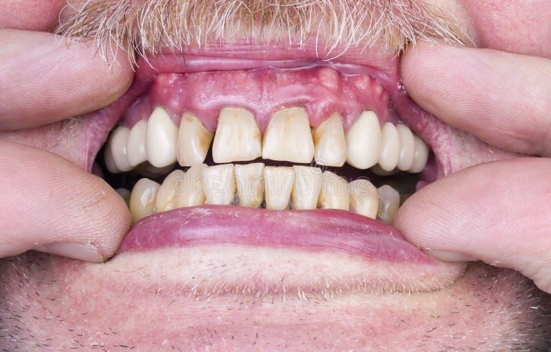 Problem med tänderna och gummina arkivfoton
