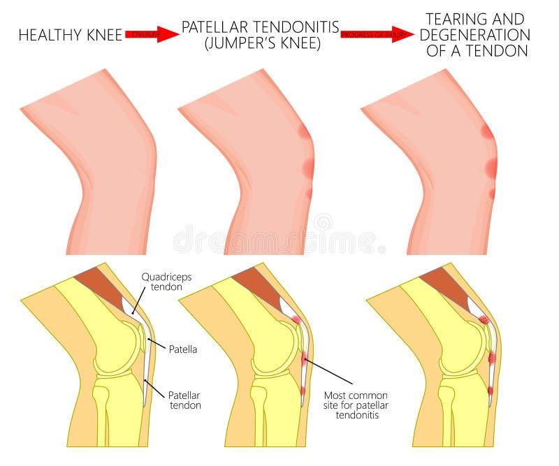 Problem_Patellar tendonitis för knäled eller förklädeknä progress stock illustrationer