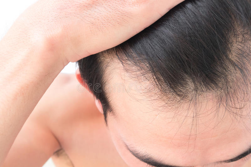 Problema de la pérdida de pelo de la preocupación del hombre joven para el champú de la atención sanitaria fotos de archivo