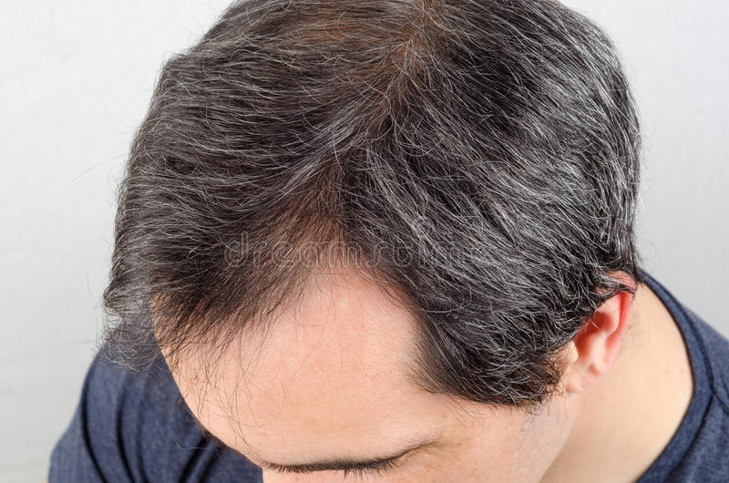 Problema de la pérdida de pelo del hombre foto de archivo
