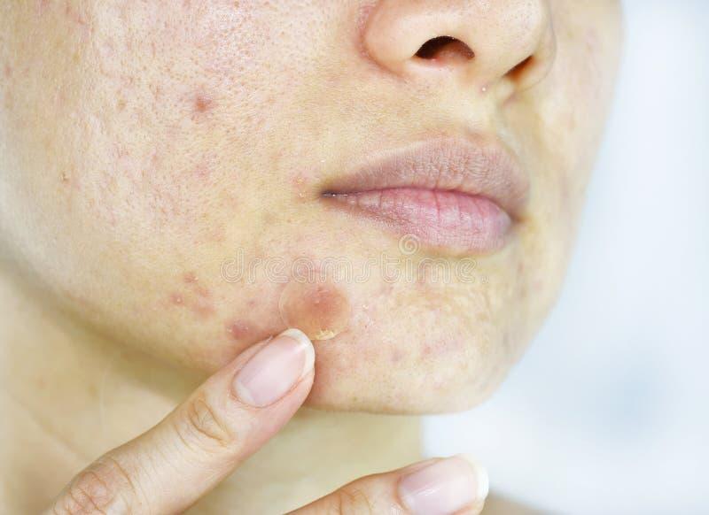 Problema de pele facial, fim acima da cara da mulher com espinhas do whitehead e remendo da acne foto de stock royalty free