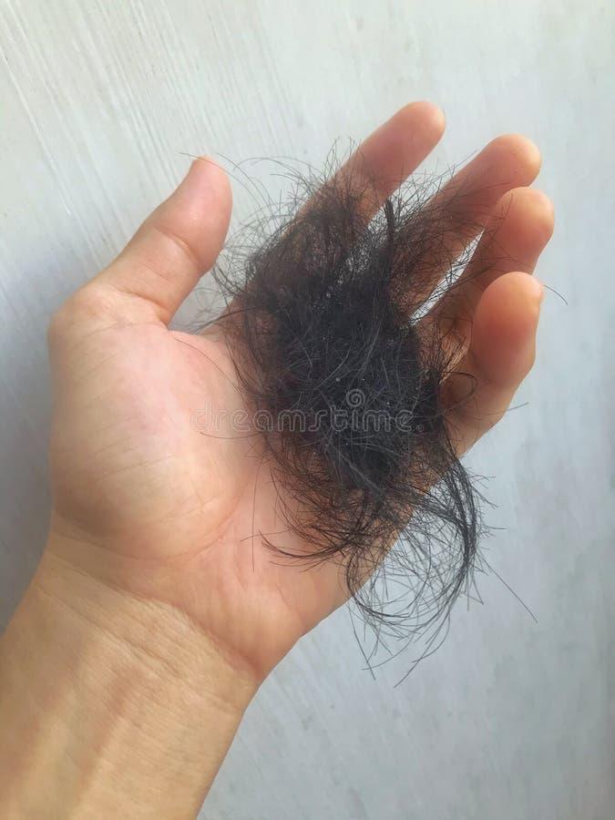 Problema de perda de cabelo, queda de cabelo imagens de stock