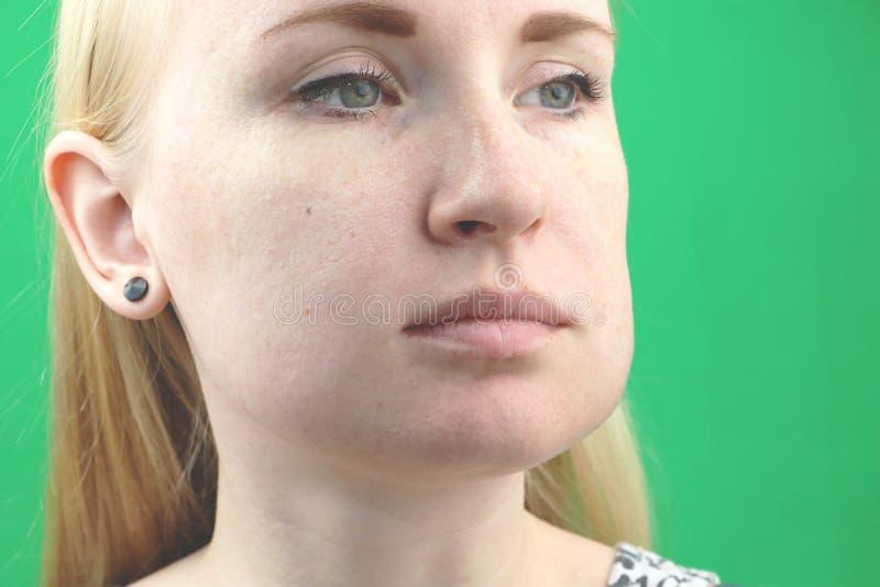 Problema dei denti Ascesso gengivale, cambiamento continuo e gonfiore della guancia Primo piano di bella ragazza triste che soffr fotografia stock libera da diritti