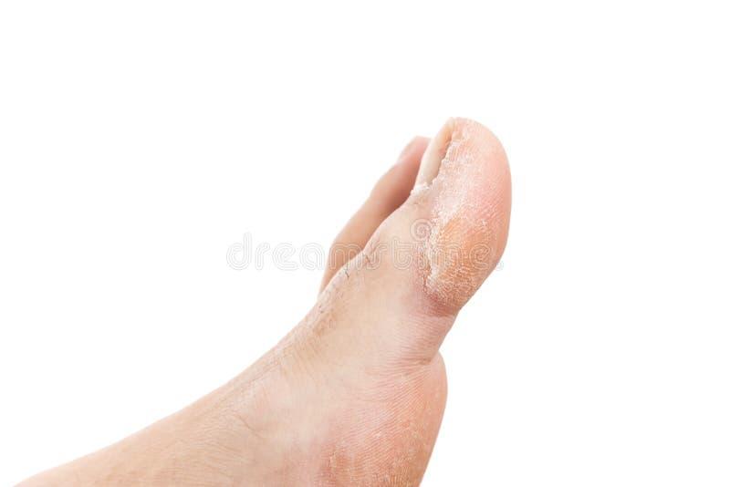Problema del callo sul dito del piede della donna fotografia stock
