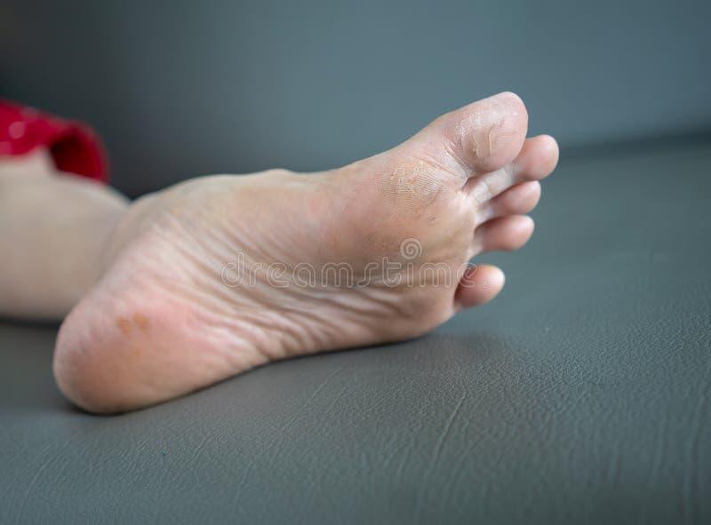 Problema del pie - las grietas en el pulgar están generalmente imagen de archivo
