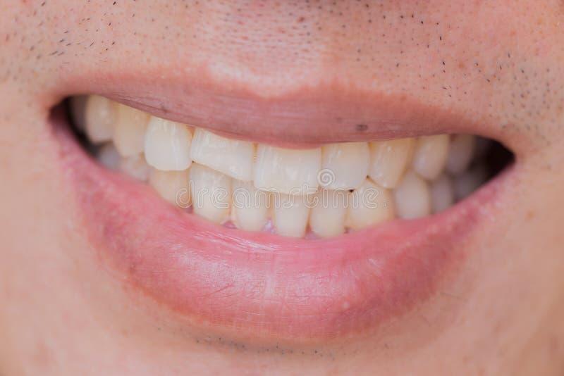 Problema dentario di sorriso brutto Lesioni dei denti o denti che irrompono maschio immagini stock