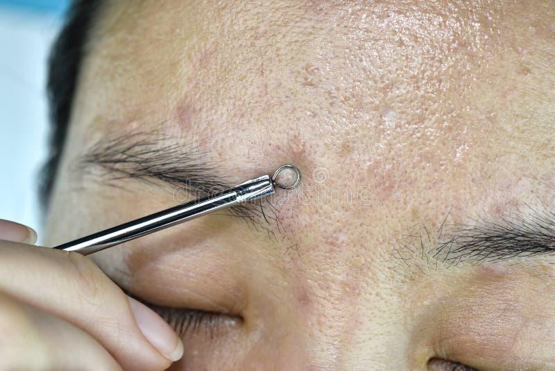 Problema di pelle con le malattie dell'acne, fine sul fronte della donna che schiaccia i brufoli del whitehead con lo strumento d fotografie stock