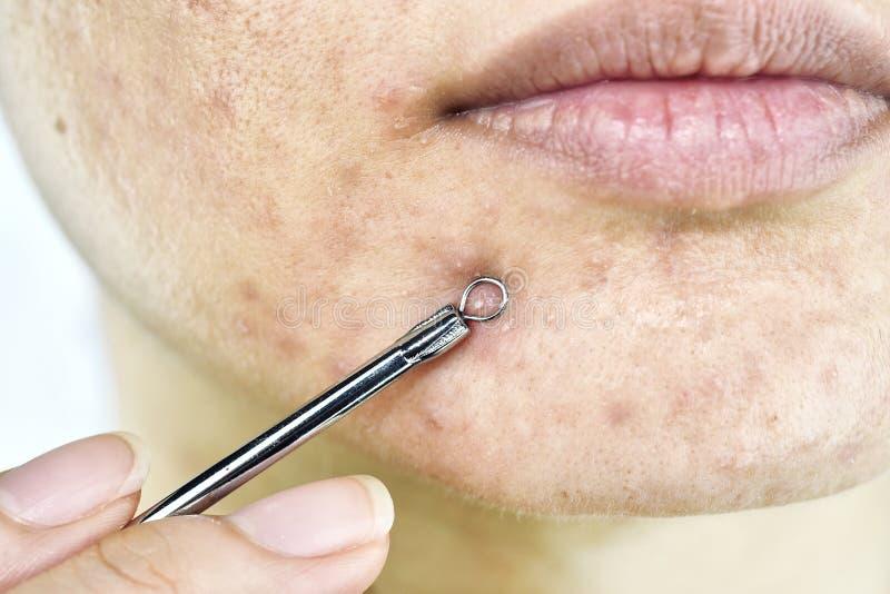 Problema di pelle con le malattie dell'acne, fine sul fronte della donna che schiaccia i brufoli del whitehead sul mento con lo s fotografie stock libere da diritti