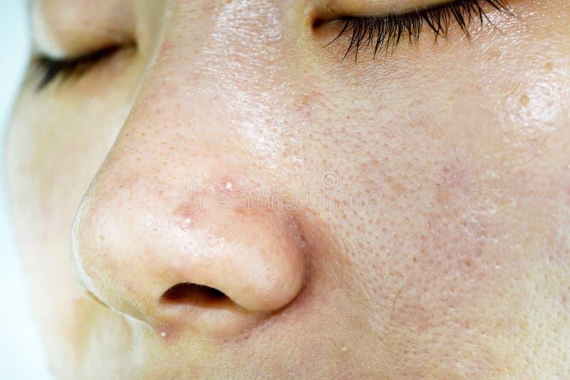Problema di pelle con le malattie dell'acne, fine sul fronte della grinza della donna con i brufoli del whitehead sul naso fotografia stock libera da diritti
