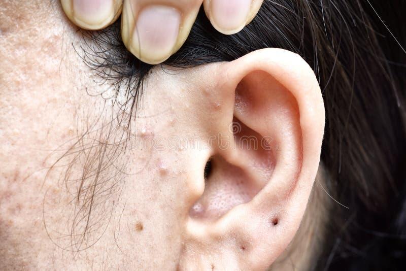 Problema di pelle con le malattie dell'acne, fine sul fronte con i brufoli del whitehead, sblocco della donna di mestruazione fotografie stock libere da diritti