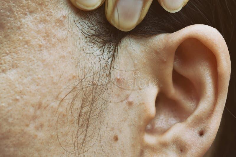 Problema di pelle con le malattie dell'acne, fine sul fronte con i brufoli del whitehead, sblocco della donna di mestruazione fotografia stock libera da diritti