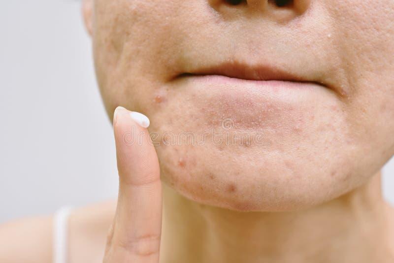 Problema di pelle del fronte e dell'acne, donna che applica il farmaco della crema dell'acne immagine stock