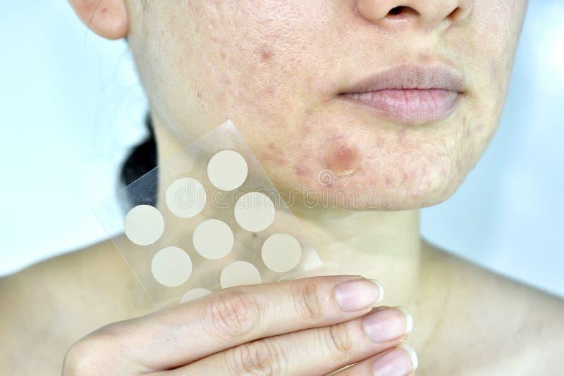 Problema di pelle facciale con la toppa dell'acne, fine sul fronte della donna con i brufoli del whitehead e cuscinetto assorbent immagini stock