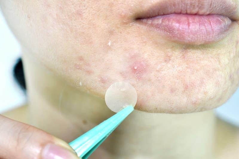 Problema di pelle facciale, fine sul fronte della cicatrice della donna con i brufoli del whitehead e toppa dell'acne immagine stock libera da diritti