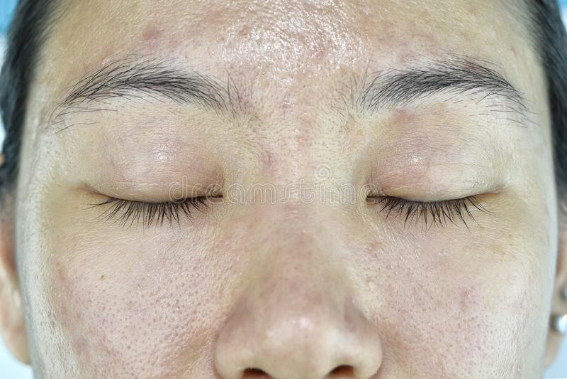 Problema di pelle facciale, problema invecchiante in adulto, grinza, cicatrice dell'acne immagini stock libere da diritti