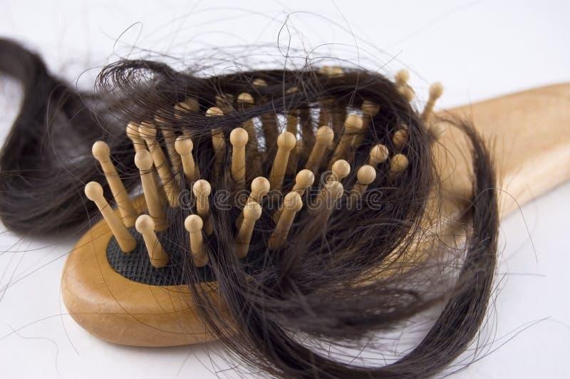 Problema di perdita di capelli fotografia stock libera da diritti