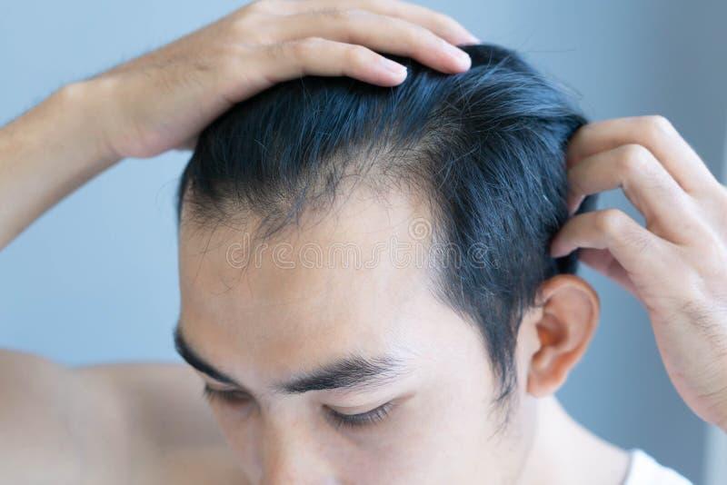 Problema grave de pérdida de cabello para atención médica concepto de productos de champú, enfoque selectivo imagenes de archivo
