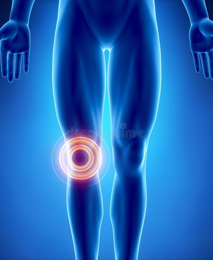 Problema humano do joelho com área destacada ilustração do vetor